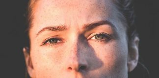 מהי פיגמנטציה וכיצד ניתן לנצח את כתמי העור העקשניים בפנים?